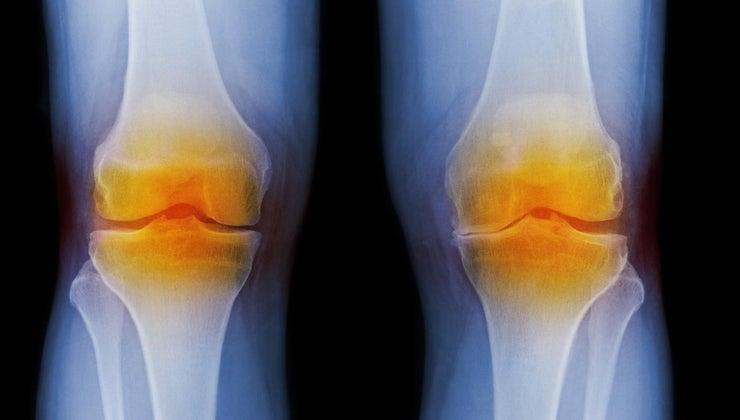 symptoms-arthritis-knee