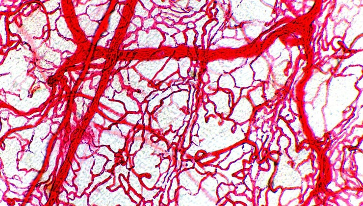 arteries-thicker-walls-veins