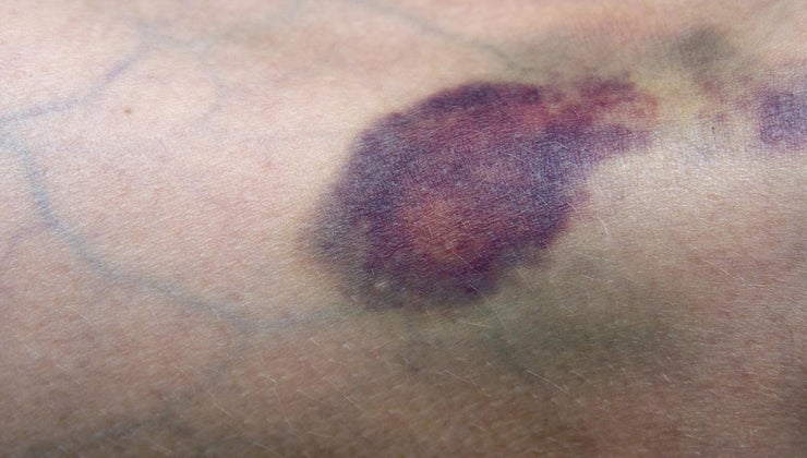 bruised-vein-should-treated