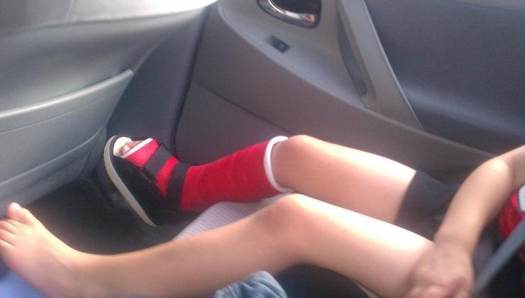 can-purposely-break-leg
