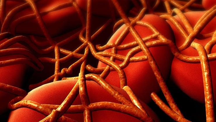 can-tell-pain-leg-blot-clot