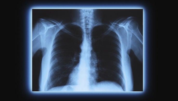 cardiomediastinal-mean