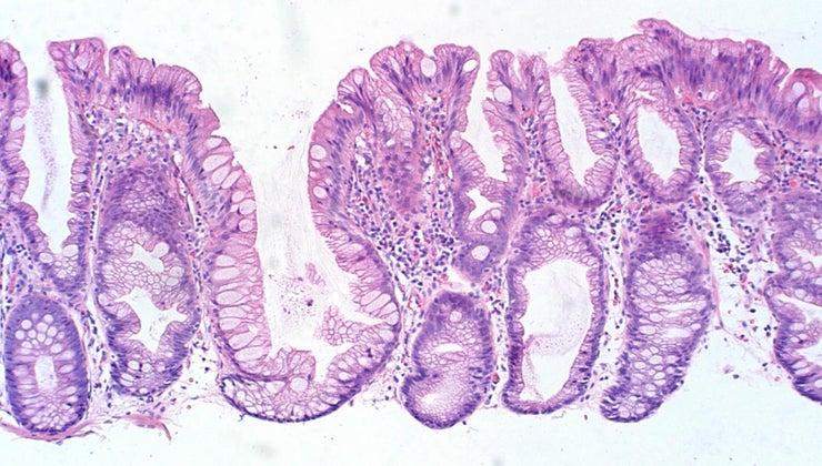 causes-colon-polyps