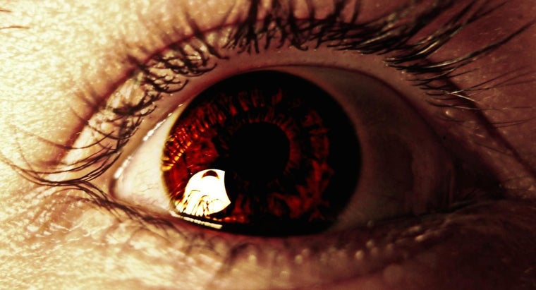 causes-eye-floaters-after-cataract-surgery