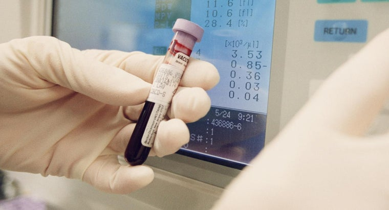 causes-high-level-vitamin-b12-blood