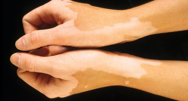 causes-light-spots-appear-skin