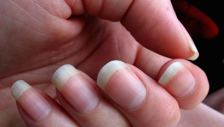 causes-muscle-cramps-hands