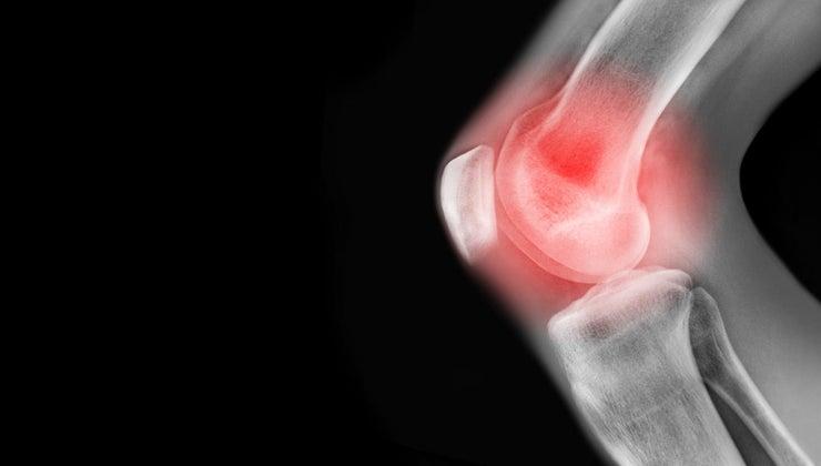 causes-pain-left-knee