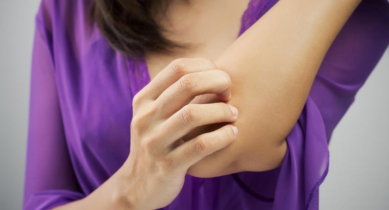 causes-severe-itching-over-body