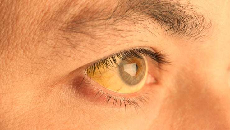 causes-skin-under-eyes-turn-yellow