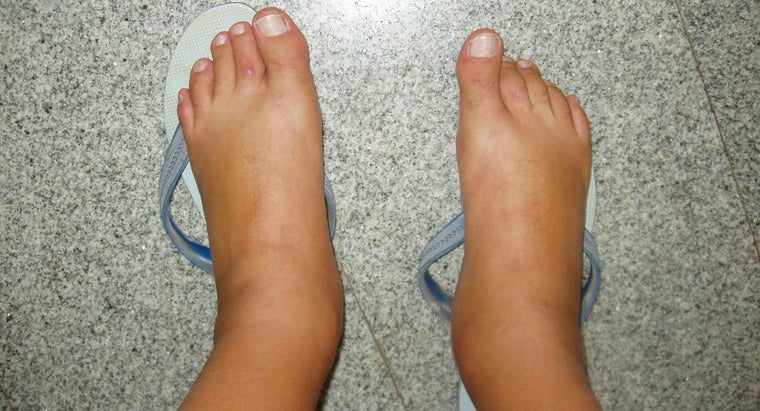 causes-swollen-feet