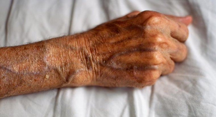 causes-veins-bulge-hands-arms