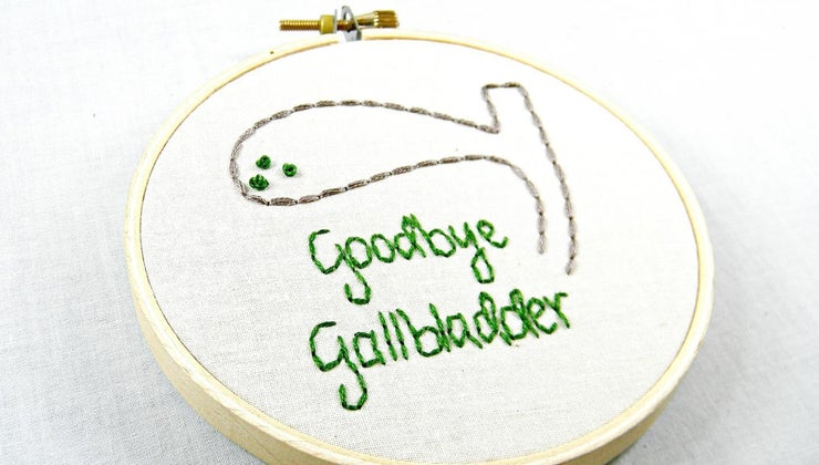 collapsed-gallbladder