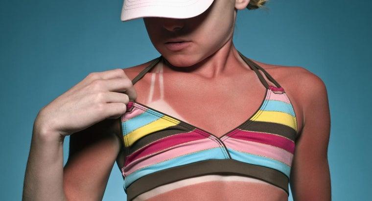 fastest-way-heal-sunburn