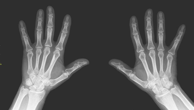 finger-toe-bones-called