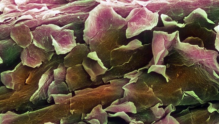 function-dermis-layer-cells
