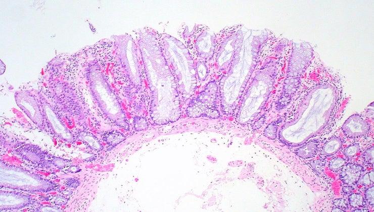 function-transverse-colon