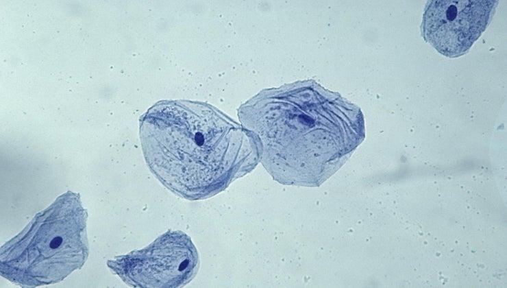 general-shape-cheek-cell