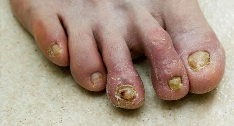 home-remedies-toenail-fungus