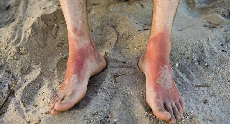 ibuprofen-rid-sunburn-pain