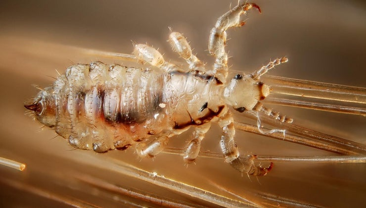 long-can-head-lice-live-host