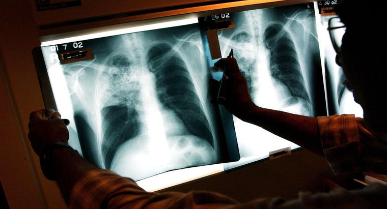 long-term-effects-tuberculosis