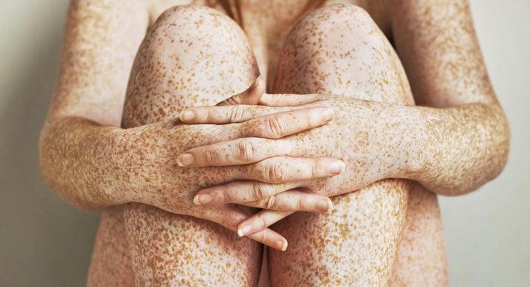medical-term-freckle
