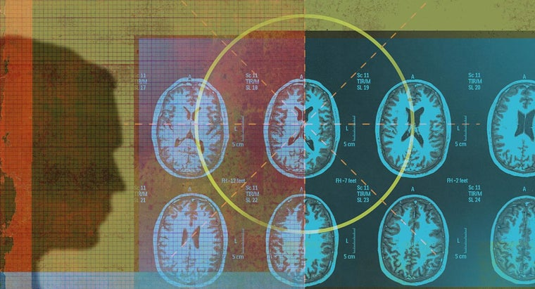 microvascular-disease-brain
