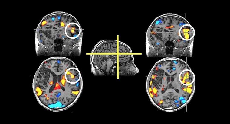 mild-diffuse-cerebral-atrophy