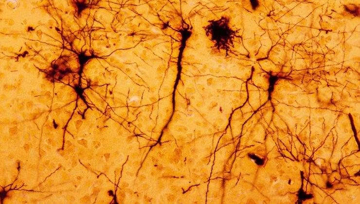 nervous-tissue-found