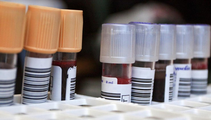 neutrophils-blood-test