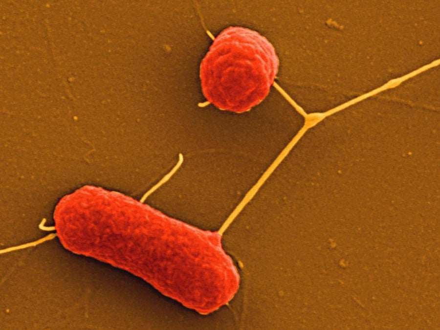 What Are Nonfastidious Bacteria