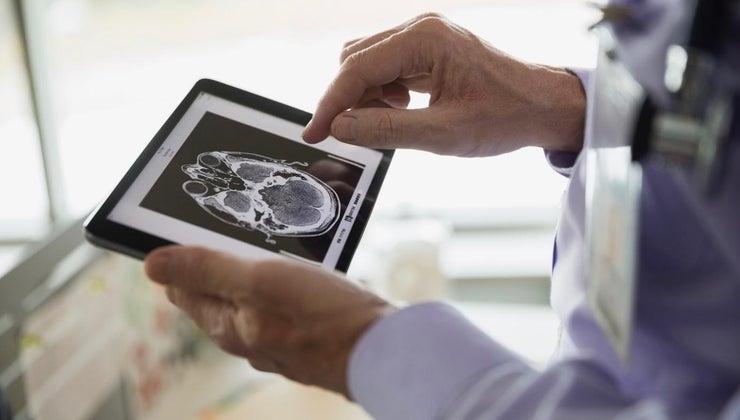 prognosis-patient-frontal-lobe-tumor
