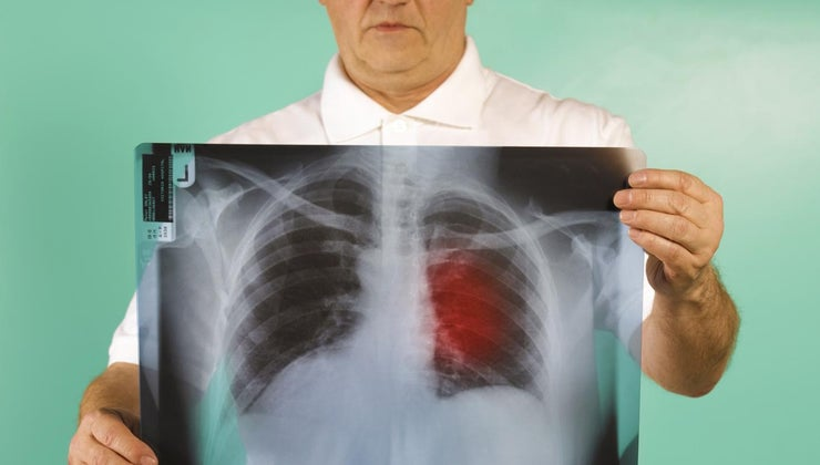 prognosis-stage-three-lung-cancer