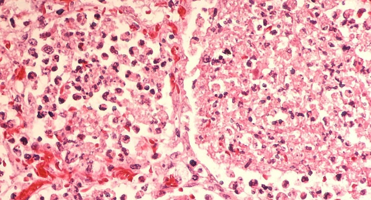 stages-pneumonia