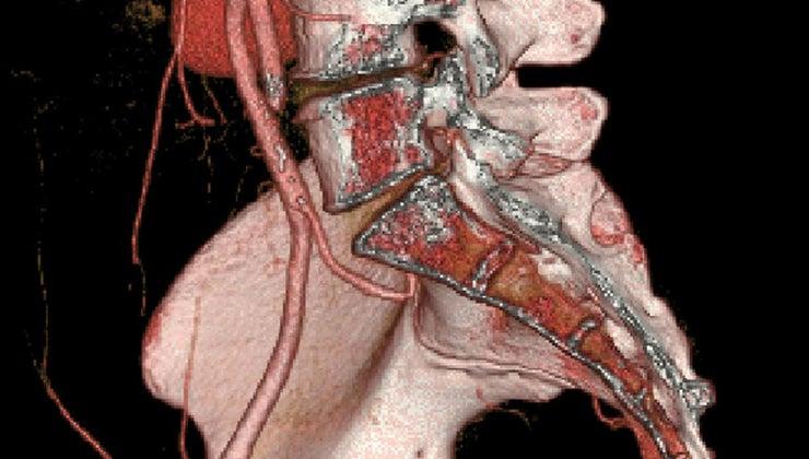 symptoms-fractured-pelvic-bone