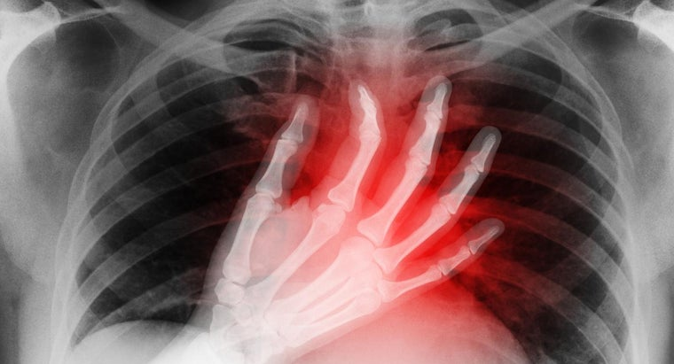 symptoms-mini-heart-attack