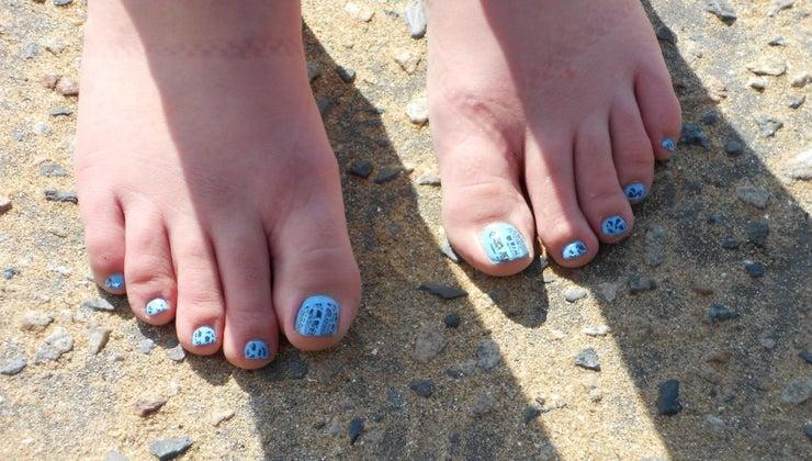toenails-curl