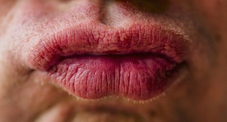 treat-lips-swollen-due-allergy