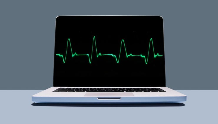 treatments-rapid-heartbeat