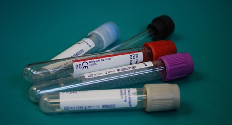 What Does A High Mpv In Blood Mean
