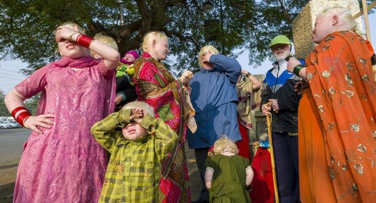 albinism-dominant-recessive