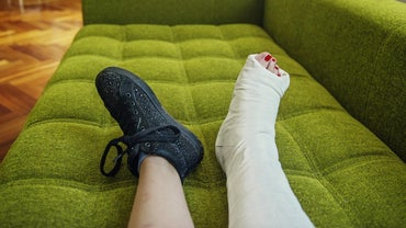 What Is the Average Healing Time for a Fibula Fracture?