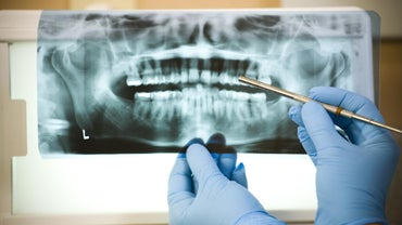 What Is the Average Price for a Root Canal?