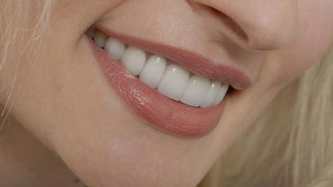 What Are the Benefits of Getting a Dental Vaneer?