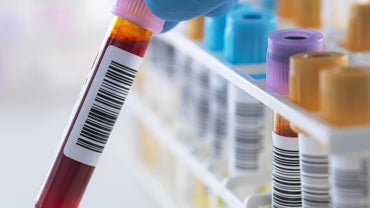 What Do Blood Tests Show?