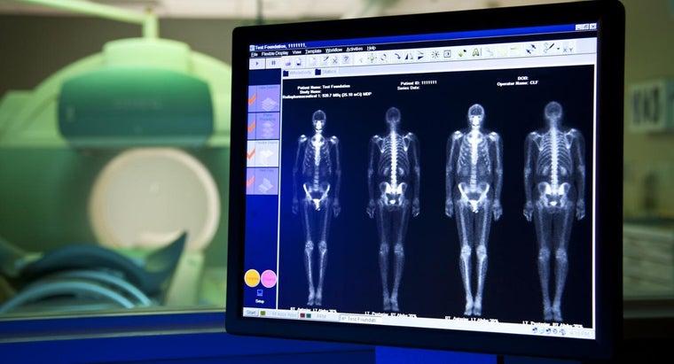 bone-scan