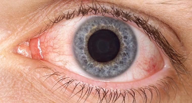 boric-acid-pink-eye