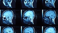 What Is a Brain Aneurysm?