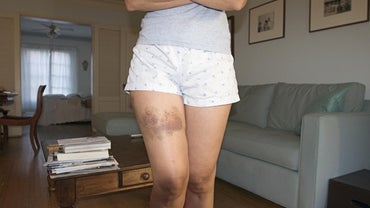 Can Anemia Cause Bruising?